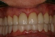 A closeup of a real patient's smile after dental treatment