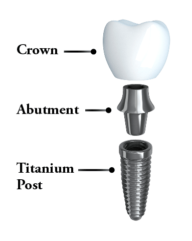 Dental implants Totowa, NJ - The anatomy of a dental implant, which acts like a natural tooth