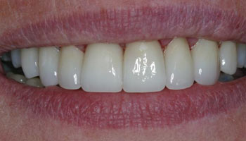 Case 11: After image of cosmetic dentistry in Totowa NJ at Distinctive Dentistry - Contact us to see what our cosmetic dentists can do for you!