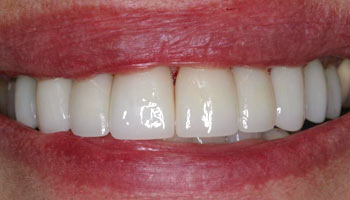 Case 6: After image of cosmetic dentistry in Totowa NJ at Distinctive Dentistry - Contact us to see what our cosmetic dentists can do for you!