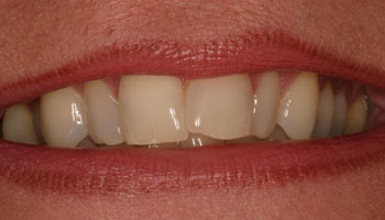 Case 1: Before image of cosmetic dentistry in Totowa NJ at Distinctive Dentistry