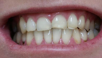 Case 10: Before image of cosmetic dentistry in Totowa NJ at Distinctive Dentistry