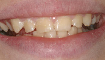 Case 13: Before image of cosmetic dentistry in Totowa NJ at Distinctive Dentistry