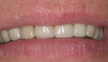 Case 2: Before image of cosmetic dentistry in Totowa NJ at Distinctive Dentistry