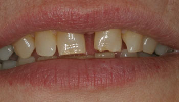 Case 3: Before image of cosmetic dentistry in Totowa NJ at Distinctive Dentistry