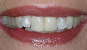 Case 4: Before image of cosmetic dentistry in Totowa NJ at Distinctive Dentistry