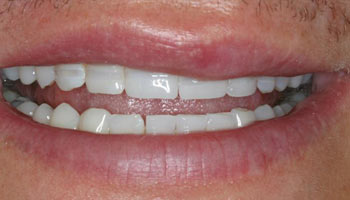 Case 5: Before image of cosmetic dentistry in Totowa NJ at Distinctive Dentistry