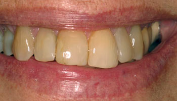 Case 6: Before image of cosmetic dentistry in Totowa NJ at Distinctive Dentistry