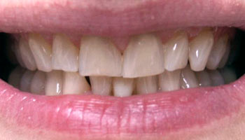 Case 7: Before image of cosmetic dentistry in Totowa NJ at Distinctive Dentistry