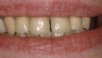 Case 9: Before image of cosmetic dentistry in Totowa NJ at Distinctive Dentistry