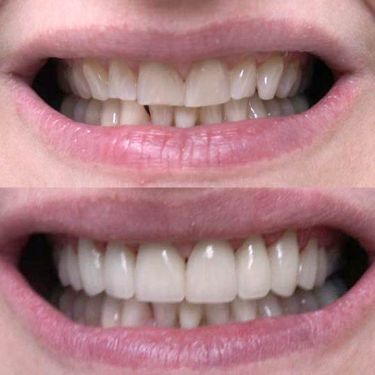 An actual before and after a crown & bridge case by Distinctive Dentistry in Totowa NJ