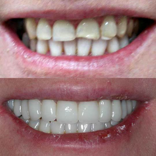 An actual before and after crowns & bridge case by Distinctive Dentistry in Totowa NJ