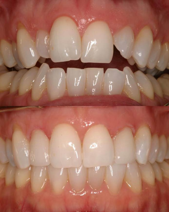 An actual before and after full mouth rehabilitation case by Distinctive Dentistry in Totowa NJ