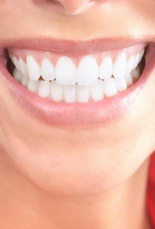 A closeup of a smile with very healthy gums, thanks to periodontics