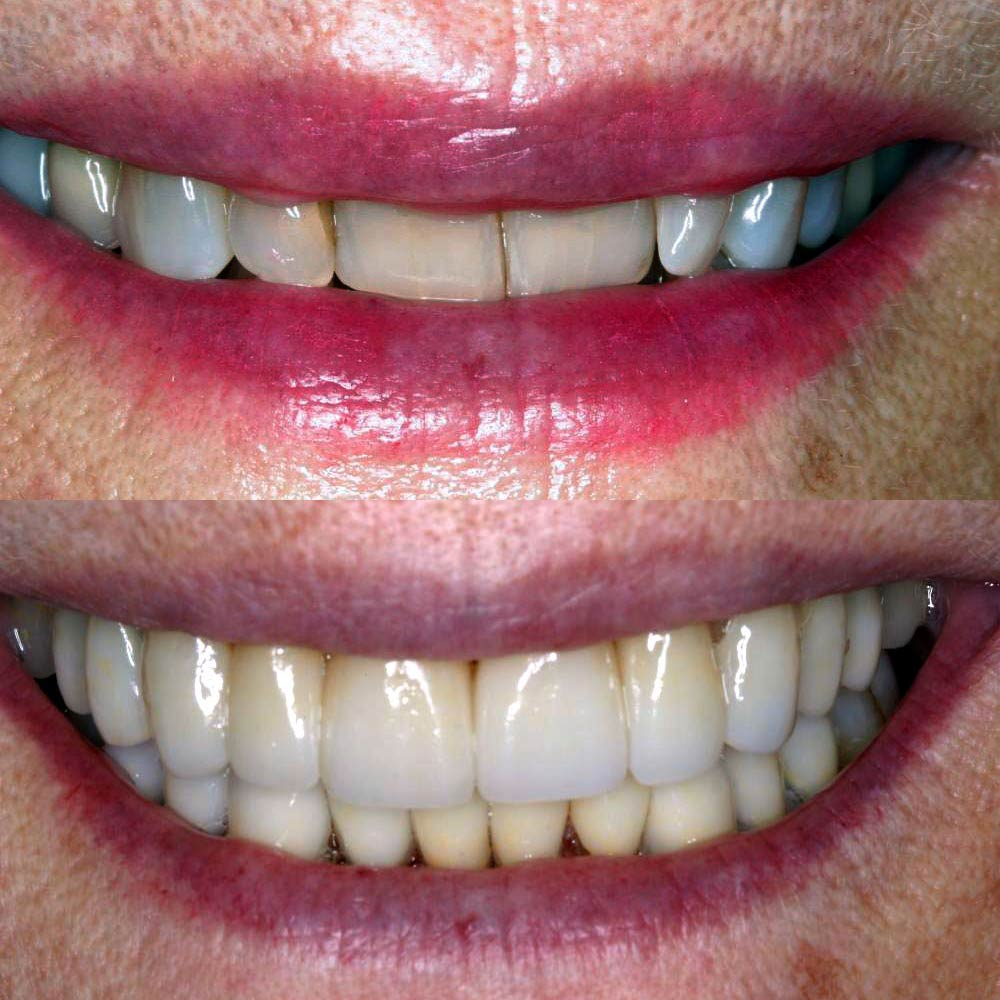 Actual before and after porcelain veneers case by one of our cosmetic dentists in Totowa, NJ